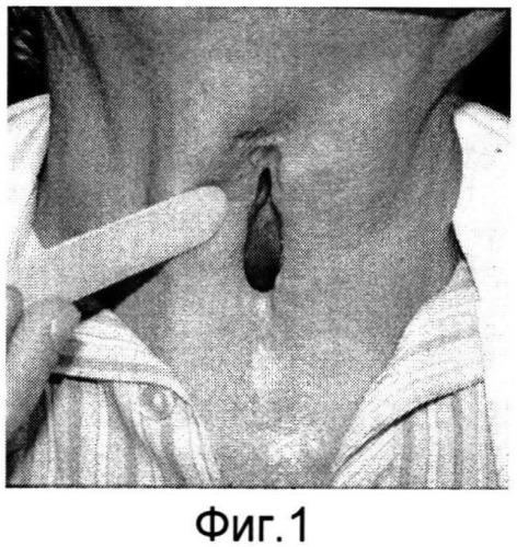 Способ восстановления дыхательной функции гортани и трахеи после формирования ларинготрахеостомы или трахеостомы