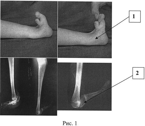 Способ устранения пяточной деформации однолучевой стопы при продольной эктромелии костей голени