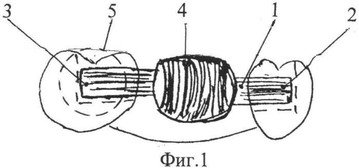 Способ замещения отсутствующих зубов несъемным адгезивным протезом и несъемный адгезивный мостовидный протез для замещения отсутствующих зубов