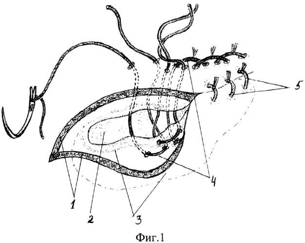 Способ оперативного лечения пупочной грыжи у лошадей