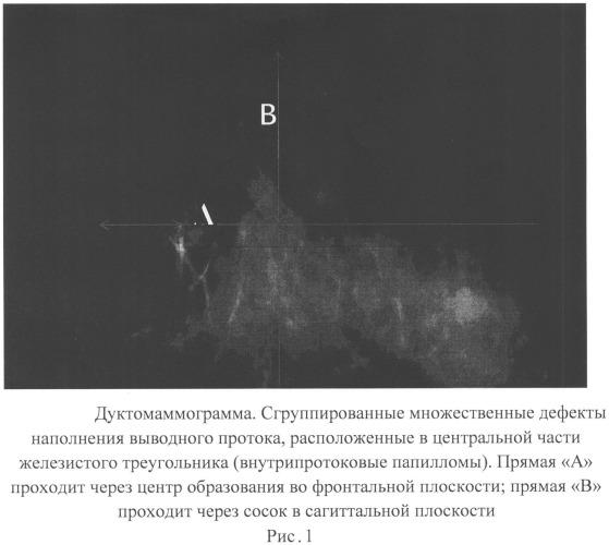 Способ определения локализации непальпируемых рентгеносонографически негативных внутрипротоковых опухолей молочных желез