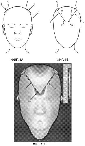 Медицинское устройство для электростимуляции