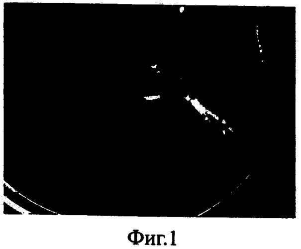 Способ диагностики и профилактики проктекозиса черноморских мидий в условиях марикультуры
