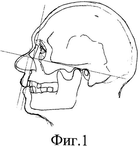Способ реконструкции лица по черепу для монголоидных групп