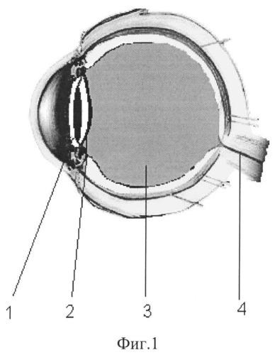 Способ улучшения зрения при факоэмульсификации