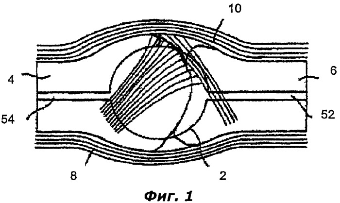 Протез сустава пальца
