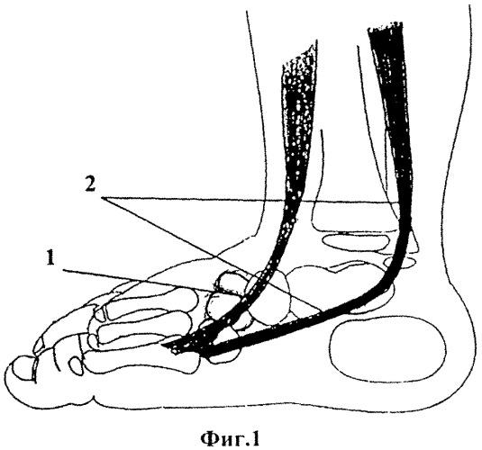 Способ хирургического лечения врожденной плоско-вальгусной деформации стоп у детей