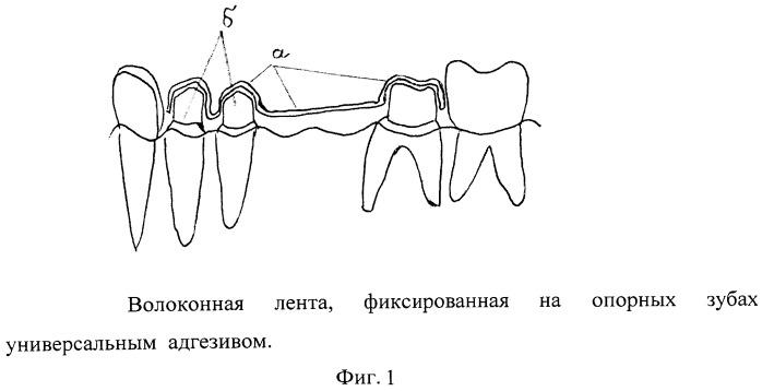 Способ изготовления временных несъемных зубных протезов