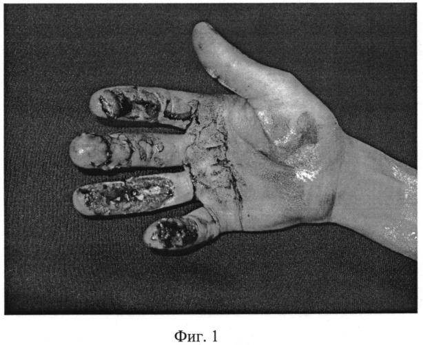 Способ васкуляризированной кожной пластики дистальных отделов пальцев кисти островковым осевым лоскутом на временной питающей ножке