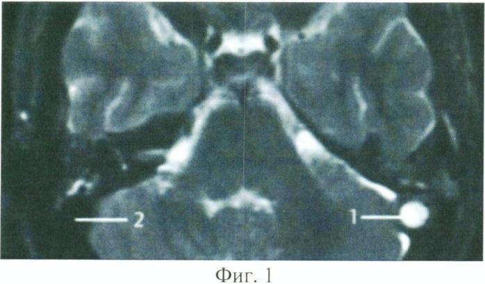Способ лечения мастоидитов, осложненных тромбофлебитом