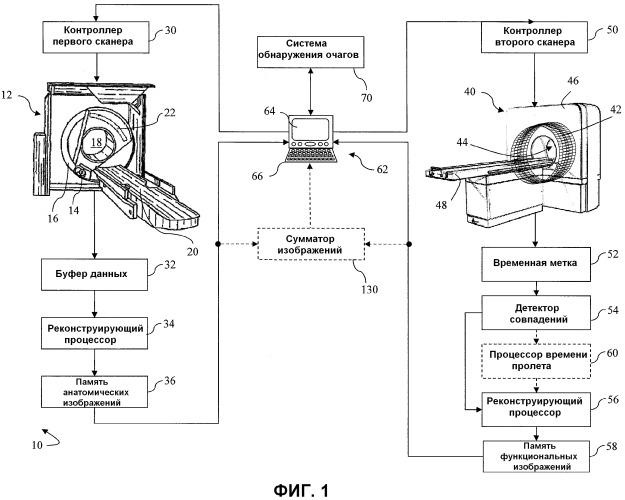 Построение анатомической модели для обозначения границ представляющей интерес опухолевой области
