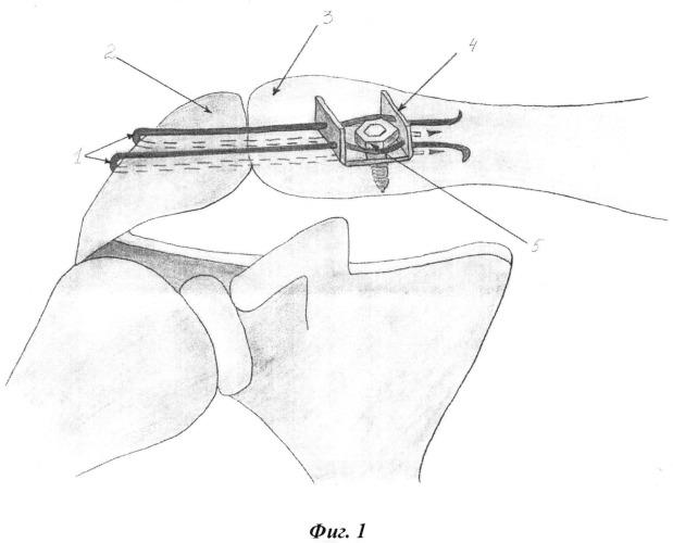 Способ хирургического лечения вывихов акромиального конца ключицы