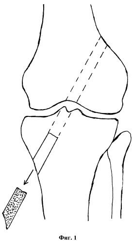 Способ пластики передней крестообразной связки коленного сустава
