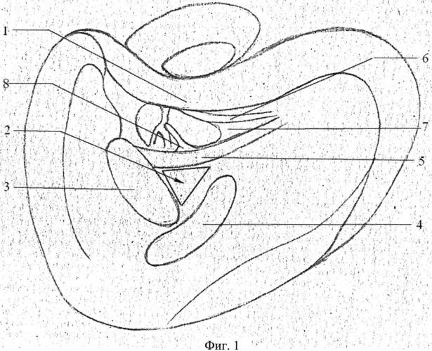Способ хирургической санации тимпанального синуса