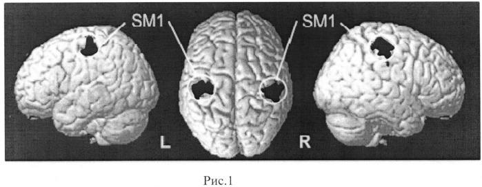 Способ прогнозирования восстановления нарушений мелкой моторики кисти после обострения рассеянного склероза