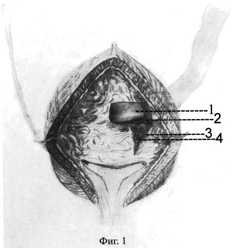 Способ хирургического лечения уретерогидронефроза