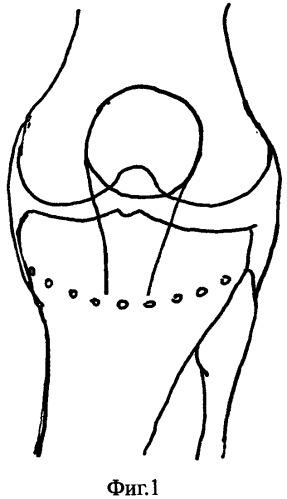 Способ лечения гонартроза, сопровождающегося осевыми деформациями нижней конечности