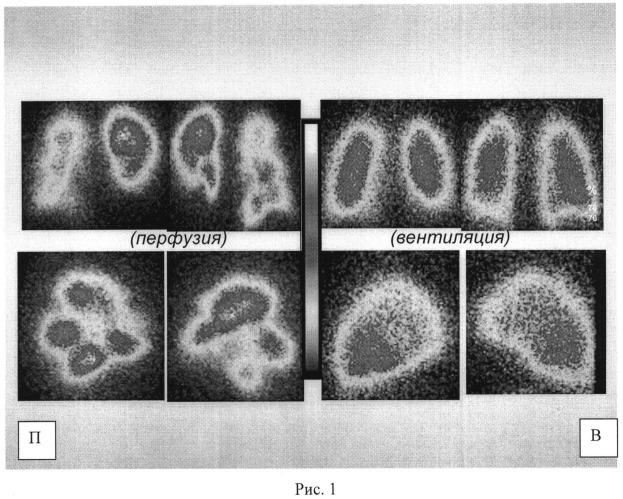 Способ дифференциальной диагностики острой тромбоэмболии легочной артерии и хронической постэмболической легочной гипертензии
