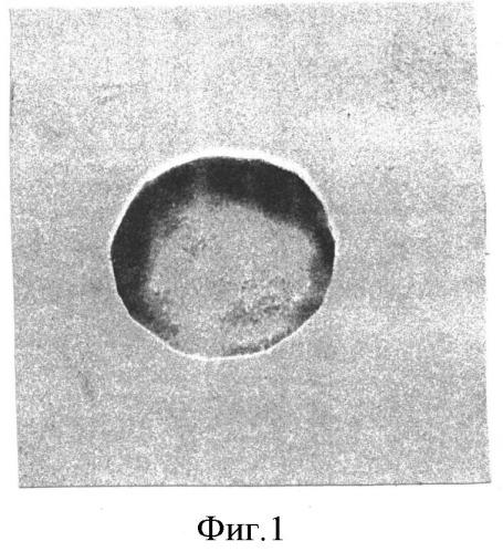 Способ оценки действия цитомегаловирусной инфекции на устойчивость мембран эритроцитов новорожденных от матерей, перенесших в третьем триместре беременности обострение цитомегаловирусной инфекции