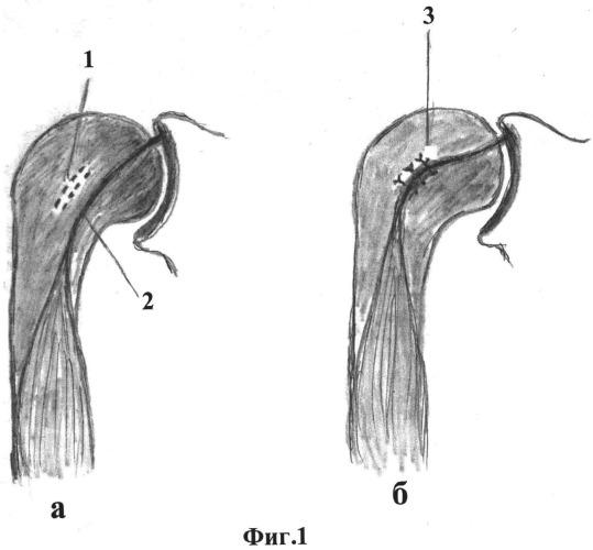 Способ оперативного лечения привычного вывиха плеча