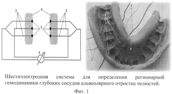 Система электродов для определения регионарной гемодинамики глубоких сосудов альвеолярного отростка челюстей