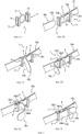 Устройство для застегивания и затягивания двух участков мягкой полосы