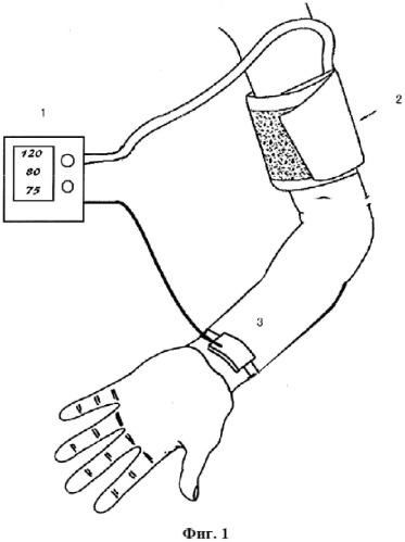 Устройство для неинвазивного измерения кровяного давления и способ его измерения