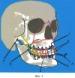 Устройство для лечения переломов средней зоны лица и способ его применения