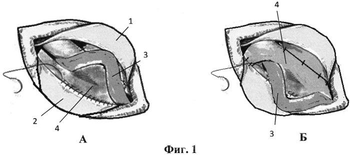 Способ протезирующей пластики при паховых грыжах