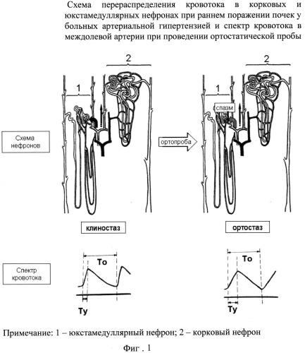 Способ диагностики раннего поражения почек при артериальной гипертензии