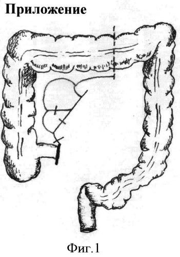 Способ хирургической реабилитации после экстирпации прямой кишки