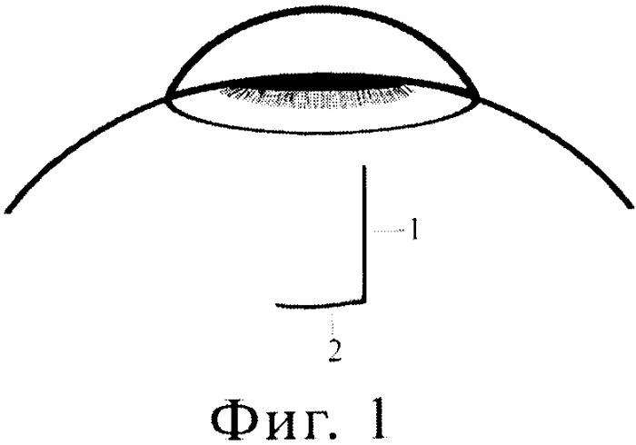 Способ герметизации конъюнктивальный раны при микроинвазивной хирургии глаукомы