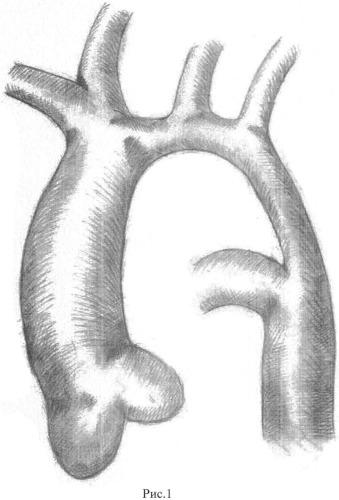 Способ коррекции коарктации аорты в сочетании с гипоплазией дуги аорты