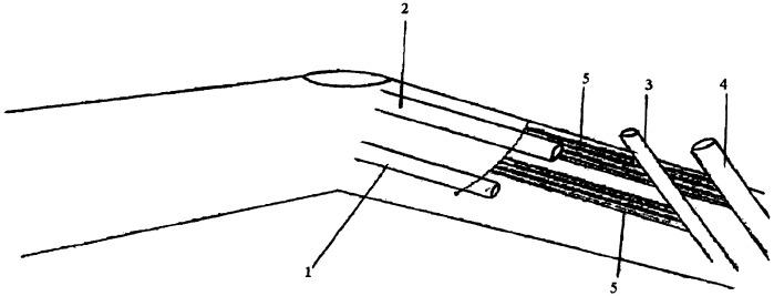 Способ ампутации конечности на уровне голени у больных с облитерирующими поражениями сосудов нижних конечностей