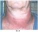Способ озонотерапии местных лучевых реакций кожи i-ii степени на полях облучения после нейтронной терапии у больных злокачественными новообразованиями головы и шеи