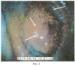 Способ экспресс-диагностики генитальной формы инфекционного ринотрахеита у коров