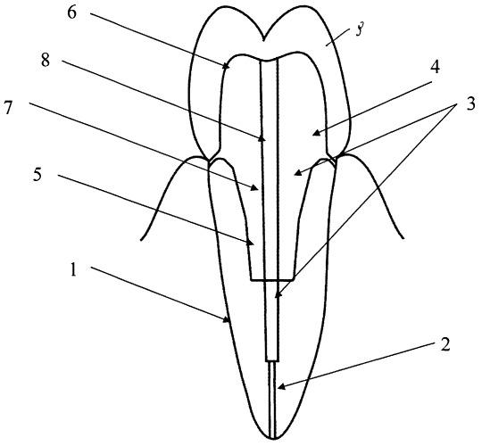 Способ восстановления коронковой части зуба