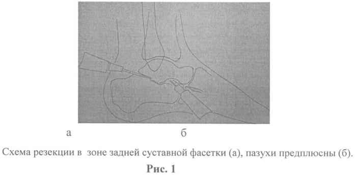 Малоинвазивный артродез подтаранного сустава
