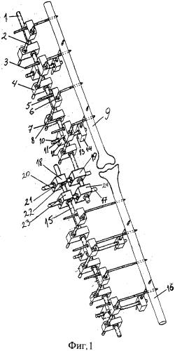 Комбинированный аппарат чрескостной фиксации стержневого типа для лечения переломов костей с жестким соединительным узлом