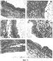 N-ацетил-l-цистеин для лечения эндометриоза