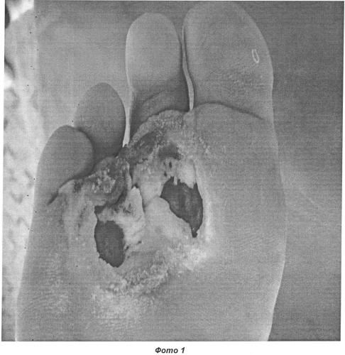 Способ лечения нейропатических трофических язв при синдроме диабетической стопы