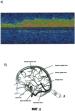 Способ определения скрытой церебральной венозной недостаточности у детей