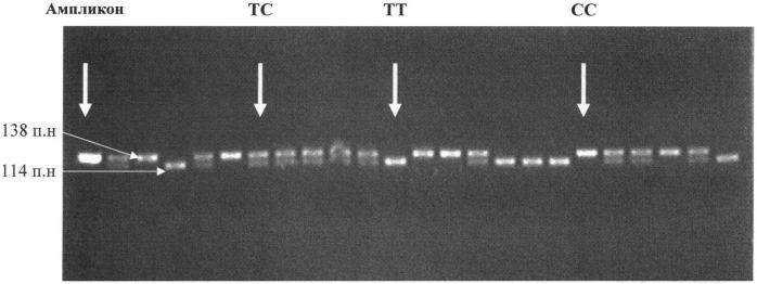 Способ генотипирования полиморфизма rs2551715 гена глутатионредуктазы у человека