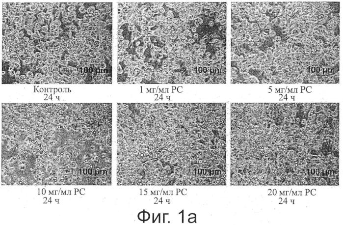 Применение фосфолипид-содержащей композиции для удаления подкожных скоплений жира посредством подкожного липолиза