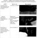 Способ системной реабилитации пациентов с плегией в области предплечья и кисти