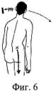 Способ выбора тактики мануальной терапии при лечении неврологических проявлений грыж и протрузий поясничных межпозвонковых дисков по в.к. калабанову