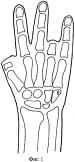 Способ восстановления пальца кисти