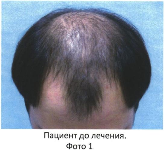 Способ трансплантации волос