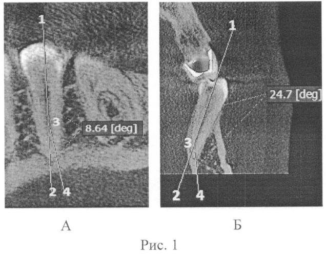 Способ измерения кривизны корневого канала зуба