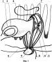 Способ ушивания ран анального канала после геморроидэктомии